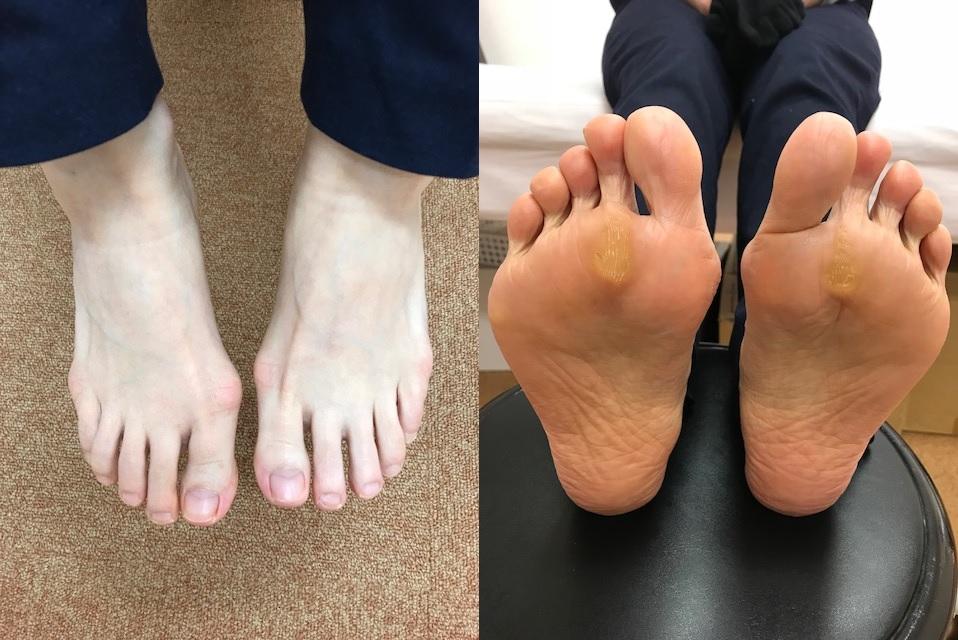 外反母趾でピリピリ痛みが出て立つのも歩くのも痛くなった!