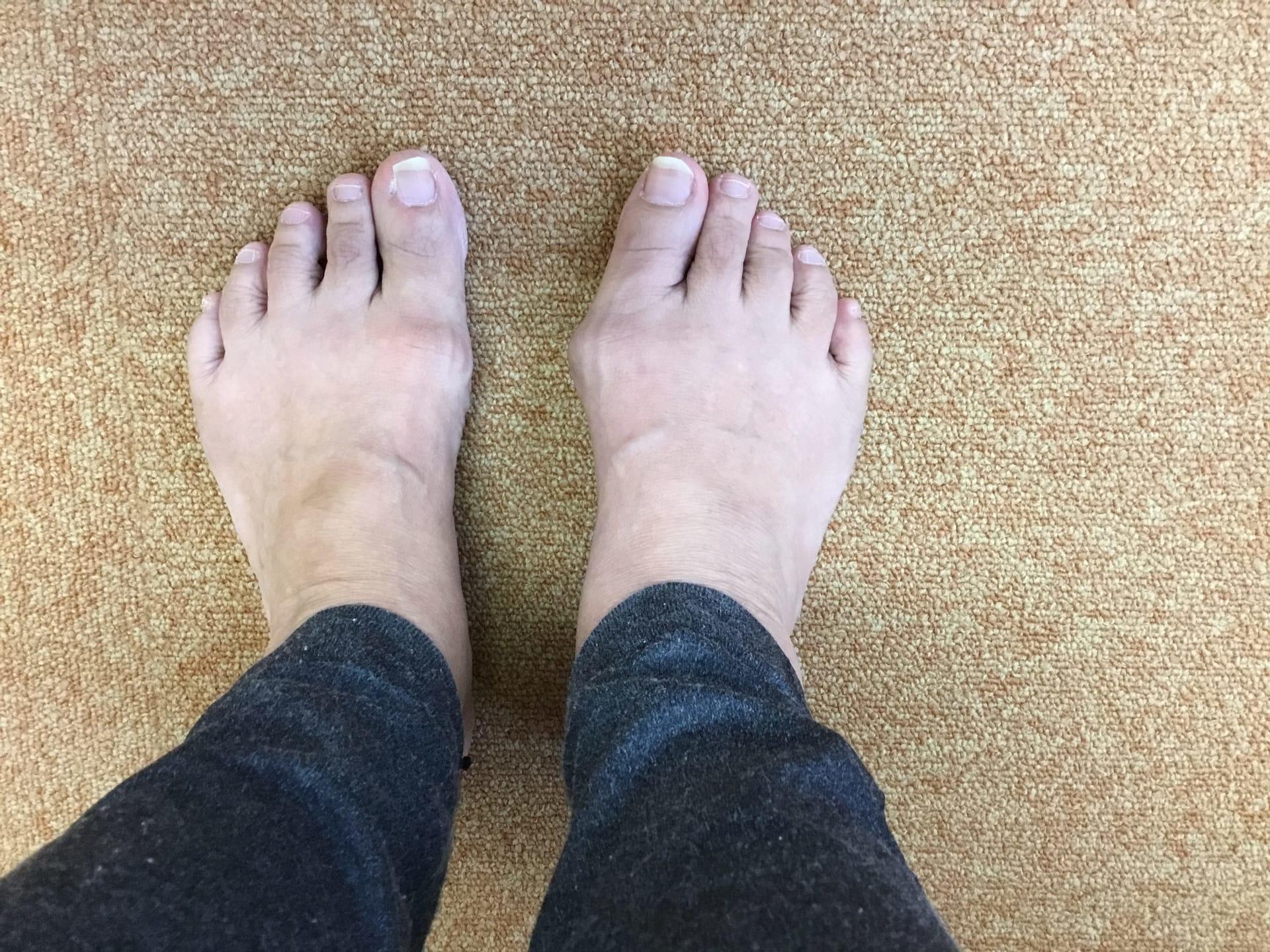 30年前からの痛みのない外反母趾が痛み出した
