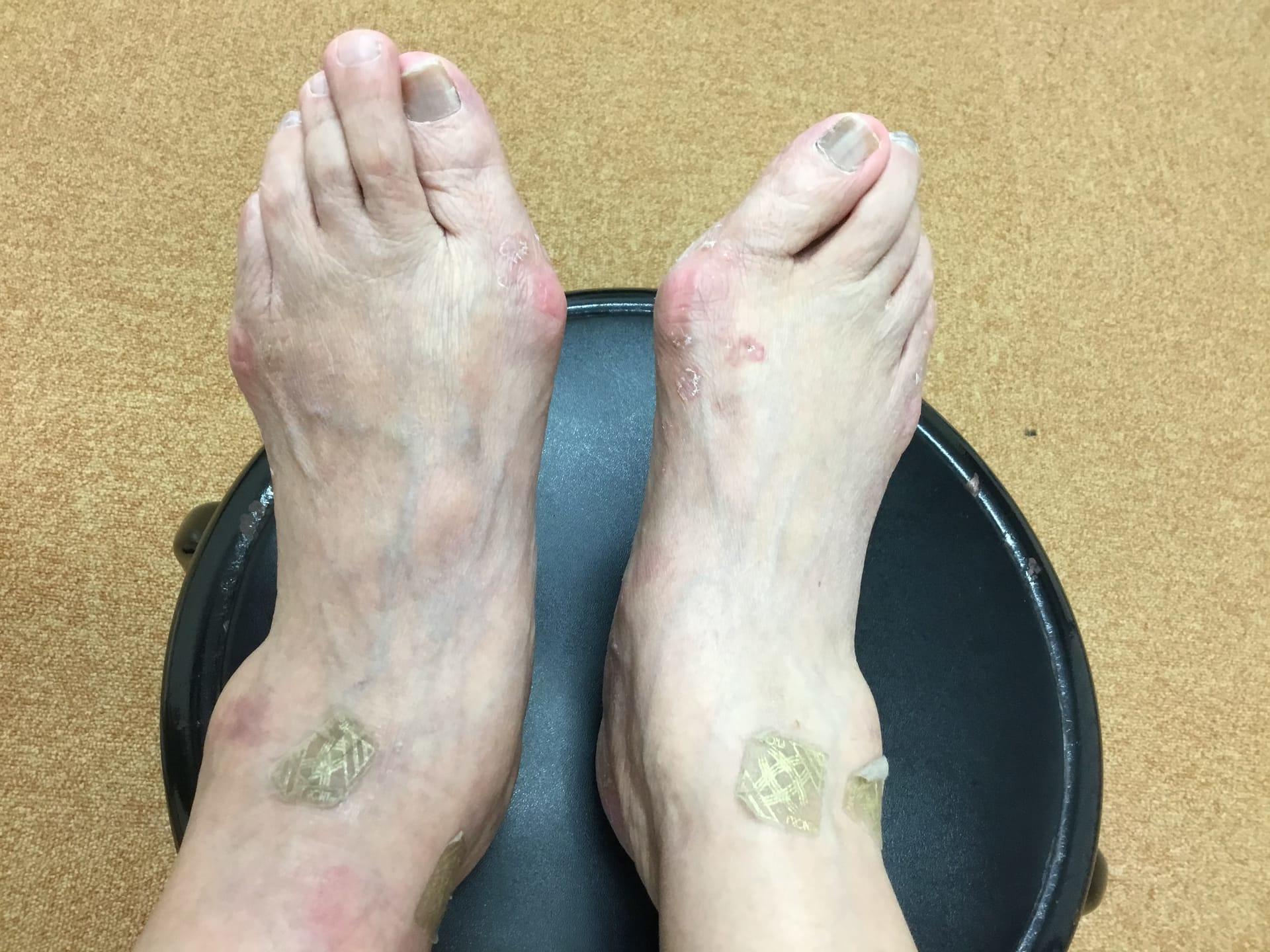 外反母趾であちこちの病院へ来院したが、どんどん色々な症状出る、なぜ?