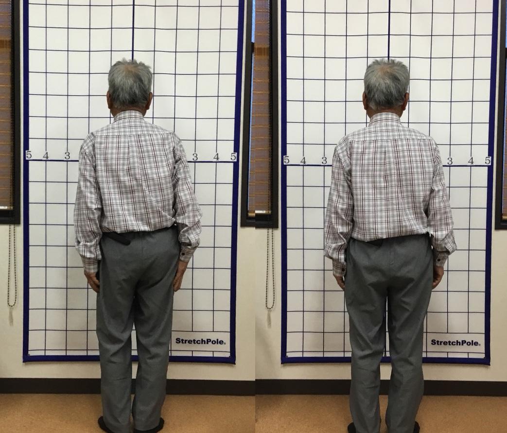7年前からの脊柱管狭窄症が1回の施術で楽に歩けるように!